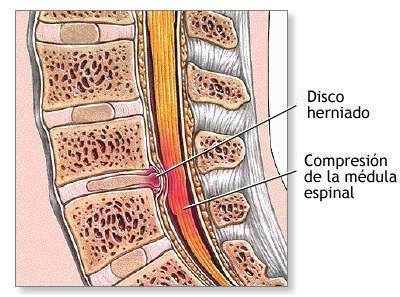 El tratamiento de la tuberculosis de la columna vertebral